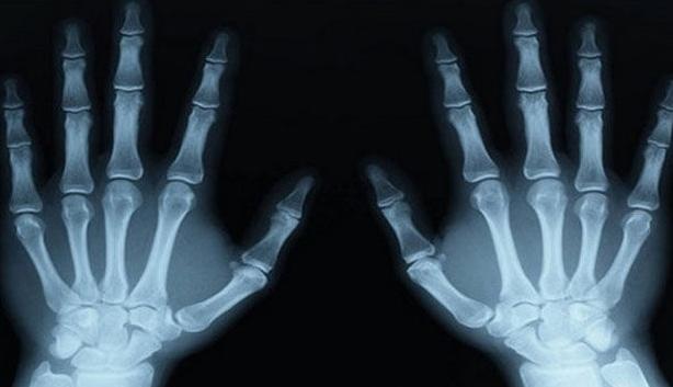 7. X-rays